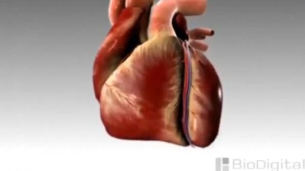 فيديو يوضح تحدث الذبحة الصدرية